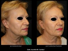 Fotoringiovanimento - resurfacing - Foto del prima - Dott. Aurelio M. Cardaci