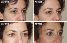 Eyelid surgery (Blepharoplasty) - Photo before - Anthony Geroulis M.D.
