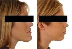 Chin Surgery - Photo before - McIndoe Cosmetic Surgery