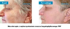 Regeneris – biostimulation of skin cells - Photo before - Klinika ELITE - Centrum Laseroterapii