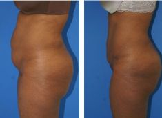 Abdominoplasty (Tummy Tucks) - Photo before - M.D., F.A.C.S. Bernard A. Shuster