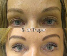 Operace očních víček (Blefaroplastika) - fotka před - MUDr. Evžen Trupar Ph.D.