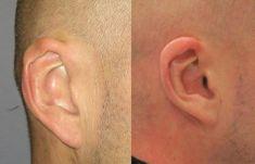Operace uší (Otoplastika) - fotka před - MUDr. Jiří Borský Ph.D.