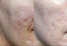 Laser acne treatment - Photo before - Dr. Dobos Calin