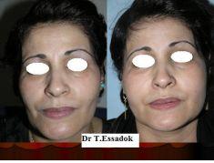 Lipofilling ou autogreffe de tissu graisseux - Cliché avant - Dr Tayeb Essadok