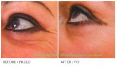 Botulinum toxin - Wrinkle Removal - Photo before - Mandala Beauty Clinic