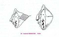 Vaginoplastie - Cliché avant - Dr Laurent Benadiba M.D