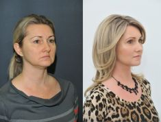 Eyelid surgery (Blepharoplasty) - Photo before - Klinika YES VISAGE - klinika estetické medicíny a plastické chirurgie