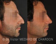 Docteur Victor Medard de Chardon - Le patient présentait des difficultés respiratoires avec un nez long et cyphotique. Demande de correction esthétique le plus naturel possible.