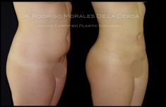 Laser Liposuction -  SmartLipo - Photo before