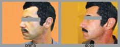 Profiloplastica (Rinoplastica e Mentoplastica) - Foto del prima - Dott. Luca Leva Chirurgo Plastico