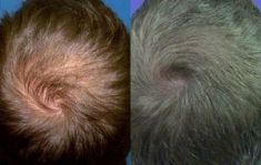 Thérapie par plasma riche en plaquettes (PRP) - Résultat 8 mois après le traitement