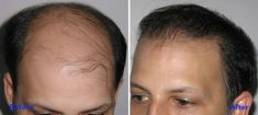 Hair Transplant - Photo before - Azim Jahangir Khan M.D.