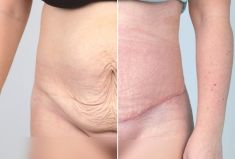 Abdominoplasty (Tummy Tucks) - Photo before - MUDr. Petr Havránek