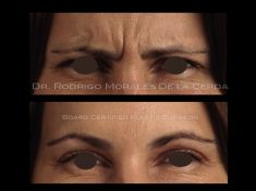 Botox/Dysport - Eliminar arrugas - Foto Antes de - Dr. Rodrigo Morales De la Cerda
