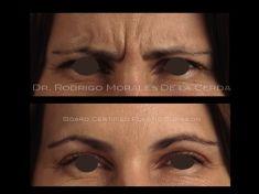 Botulinum toxin - Wrinkle Removal - Photo before - Dr. Rodrigo Morales De la Cerda