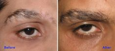 Eyebrow transplantation - Photo before - Azim Jahangir Khan M.D.