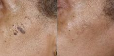 Treatment of cellulite - Photo before - Brandeis Clinic by Lucie Kalinová