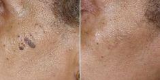 Léčba celulitidy - fotka před - Brandeis Clinic by Lucie Kalinová