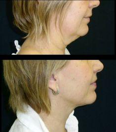 Liposukce - fotka před - MUDr. Libor Kment