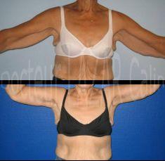 Lifting des bras - Lifting de la face interne des bras avec cicatrice longue. Résultat à 1 an chez patiente de plus de 60 ans.