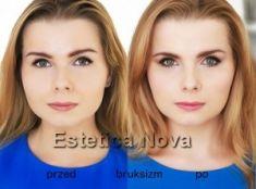 BOTOX® - Zdjęcie przed - Dr Ewa Rybicka
