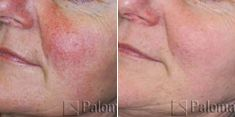 Spider veins laser removal (redness, birh marks) - Photo before - Brandeis Clinic by Lucie Kalinová