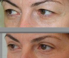 Eyelid surgery (Blepharoplasty) - Photo before - Poliklinika Sinteza