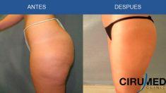 Liposucción - Foto Antes de - Dr. Alexander Amir Aslani