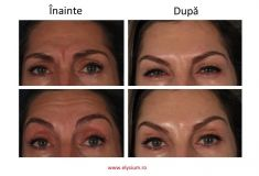 Botulinum toxin - Wrinkle Removal - Photo before - Dr. Ion Zegrea PhD
