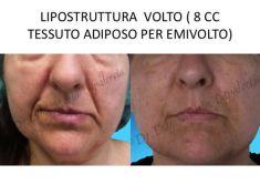 - Foto del prima - Dr. Luigi Maria Lapalorcia Specialista in Chirurgia Plastica Ricostruttiva ed Estetica