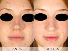 Tratamientos para el acné - Foto Antes de - Clínica Planas