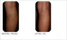 Laserowe leczenie żylaków EVLA - Zdjęcie przed - Mandala Beauty Clinic