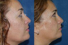 Cirugía de párpados (Blefaroplastia) - Foto Antes de - Dra. Ana Martinez Padilla