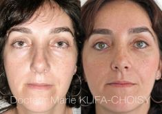 Dr Marie Klifa-Choisy - http://www.chirurgie-esthetique-nice.fr/chirurgie-esthetique/chirurgie-du-visage/blepharoplastie-chirurgie-des-paupieres/http://www.chirurgie-esthetique-nice.fr/chirurgie-esthetique/chirurgie-du-visage/blepharoplastie-chirurgie-des-paupieres/