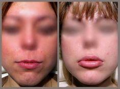 Queiloplastia (Aumento de labios) - Foto Antes de - Dr. Fernando Serrat Navarro