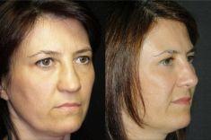 Rinoplastica - Nei trequarti, il miglioramento è evidente. La visione di entrambi i trequarti è molto importante, specie nel naso deviato ed asimmetrico.