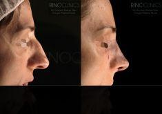 Cirugía de la nariz (Rinoplastia) - Resultado al terminar la cirugía