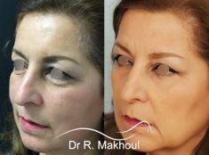 Dr Rani Makhoul - Comblement du creux des cernes, redrapage cutané, rajeunissement du regard.