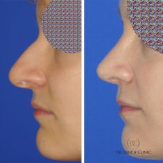 Rhinoplasty (Nose Job) - In Warsaw, at Dr Osuch Clinic, nose correction surgery is performed in the bone and cartilage part as well as total plastic surgery with nasal septum correction. The purpose of the nose correction is to give the right shape, face-fit, height and a very important aspect - personality. After the procedure the patient can expect effects such as: narrowing and straightening of the nose, removal of the hump placed on it, but also comfortable breathing resulting from the straightened nasal septum.