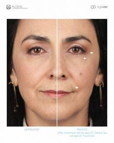 Traitement galvanique (Nu Skin Galvanic spa system ™ )  – revitalisation de la peau - Cliché avant