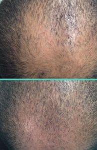 Trapianto capelli - Foto del prima - Dott.ssa Moio Mariagrazia