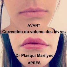 Augmentation des lèvres (acide hyaluronique) - Injection d