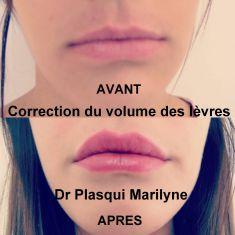 Augmentation des lèvres (acide hyaluronique) - Injection d