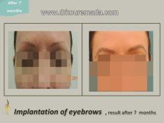 Eyebrow transplantation - Photo before - Dr. Thomy Kouremada-Zioga Hair Implant Surgeon