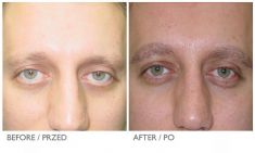Eyebrow transplantation - Photo before