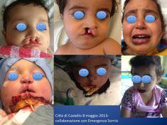 Labbro leporino - Foto del prima - Dr. Luigi Maria Lapalorcia Specialista in Chirurgia Plastica Ricostruttiva ed Estetica