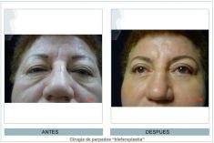 Cirugía de párpados (Blefaroplastia) - Foto Antes de - Dr. Daniel Robles Pereyra