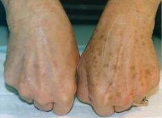 Laserové zákroky estetické dermatologie - fotka před - BcD Clinic