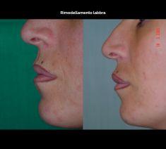 Aumento labbra - Foto del prima - Prof. Franco Migliori